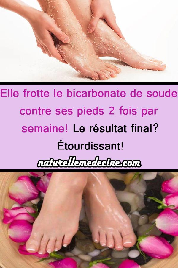 Elle frotte du bicarbonate de soude contre ses pieds 2 fois par semaine! La res …   – beauté
