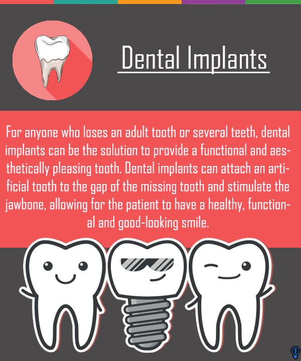 Dental Implants Are The Most Modern And Effective Way To Replace Lost Teeth Living Without
