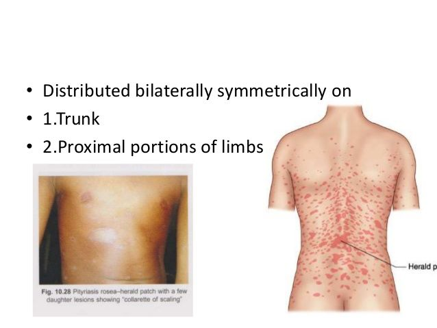 Christmas Tree Distribution Of Pityriasis Rosea This Pruritic Rash