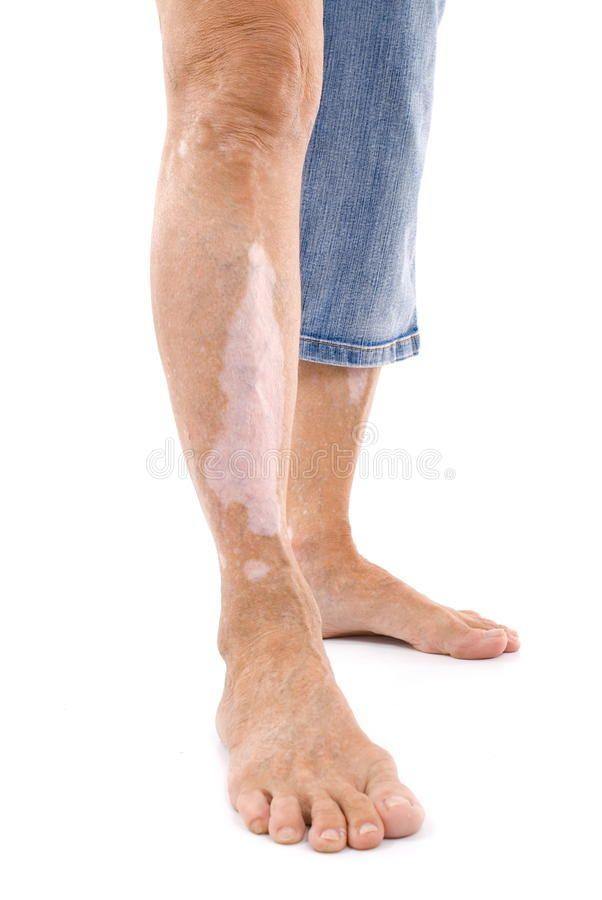 Vitiligo. Leg with Vitiligo - skin disease , #sponsored, #Leg, #Vitiligo, #disease, #skin
