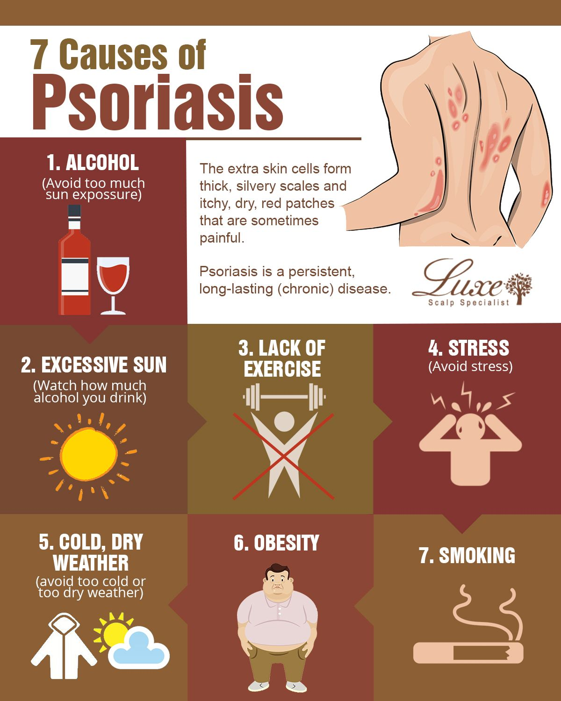 Seborrheic dermatitis fejbőr psoriasis   Sanidex Magyarországon