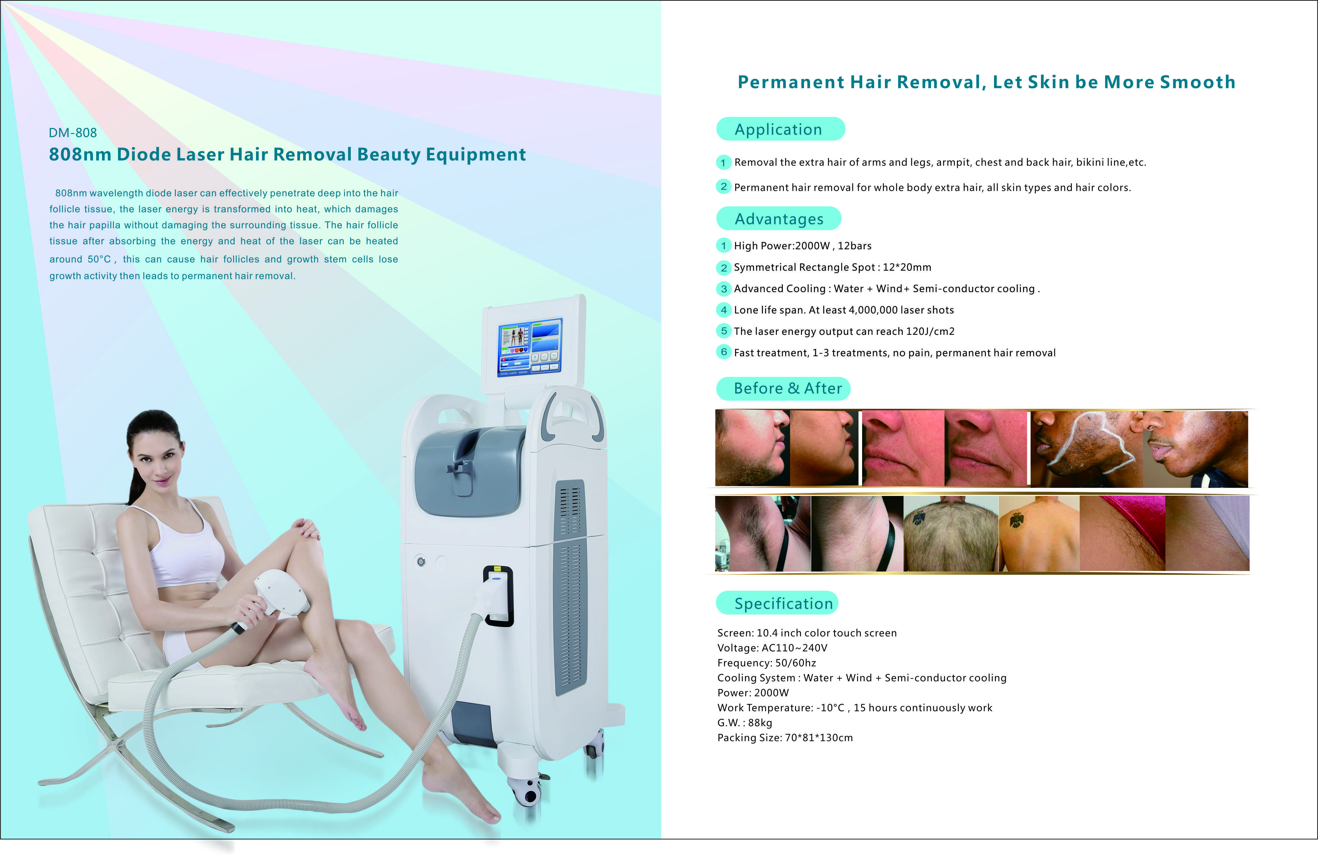 808nm diode laser hair removal machine diode laser hair removal 808nm diode laser hair removal machine xflitez Choice Image