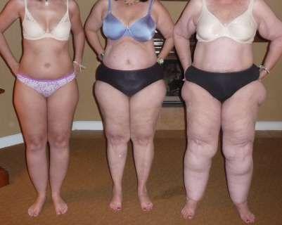 Medical weight loss monroe wa