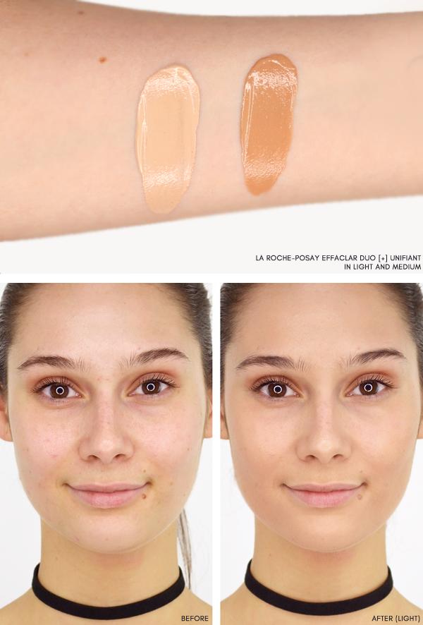 La Roche Posay Effaclar Duo Before And After Antiwrinklecreamnatural La Roche Posay Effaclar Simple Skincare La Roche Posay
