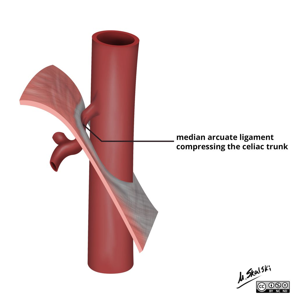 Arcuate Ligament