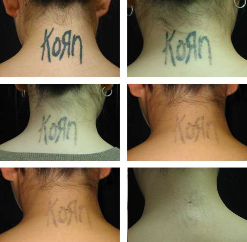 Laser Tattoo Removal On Neck Cosmetic Laser Institute Cosmetics Laser Laser Tattoo Tattoo Removal