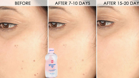 5 minutes challenge to remove all dark spots from your