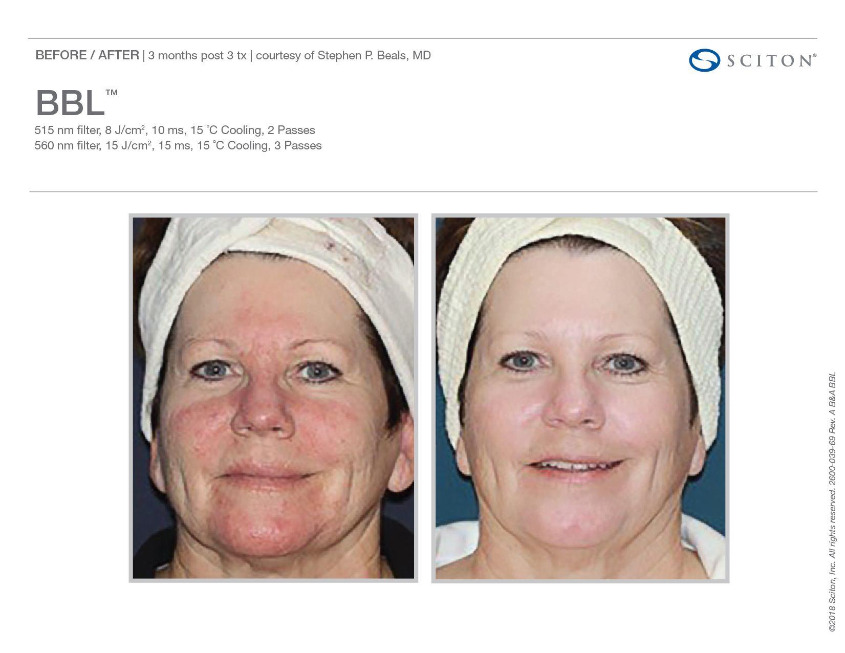 Sciton Bbl Orlando Laser Skin Rejuvenation Med Spa Skin Care Procedures