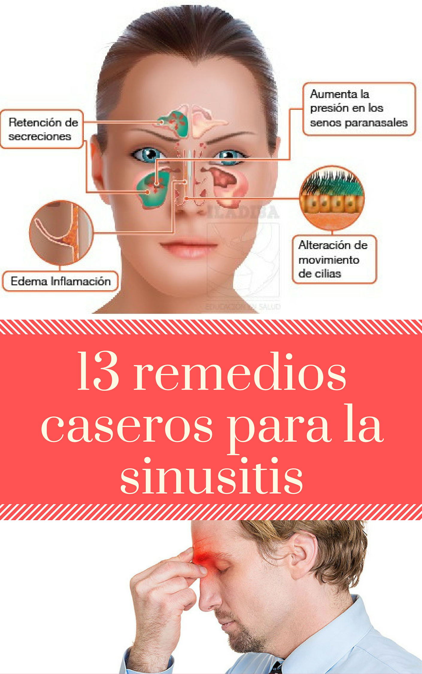 13 Remedios Caseros Para La Sinusitis Tips Life Vida Salud Remedios Tips4lives Diy Bienestar Daily Health Tips Good Health Tips Cancer Prevention