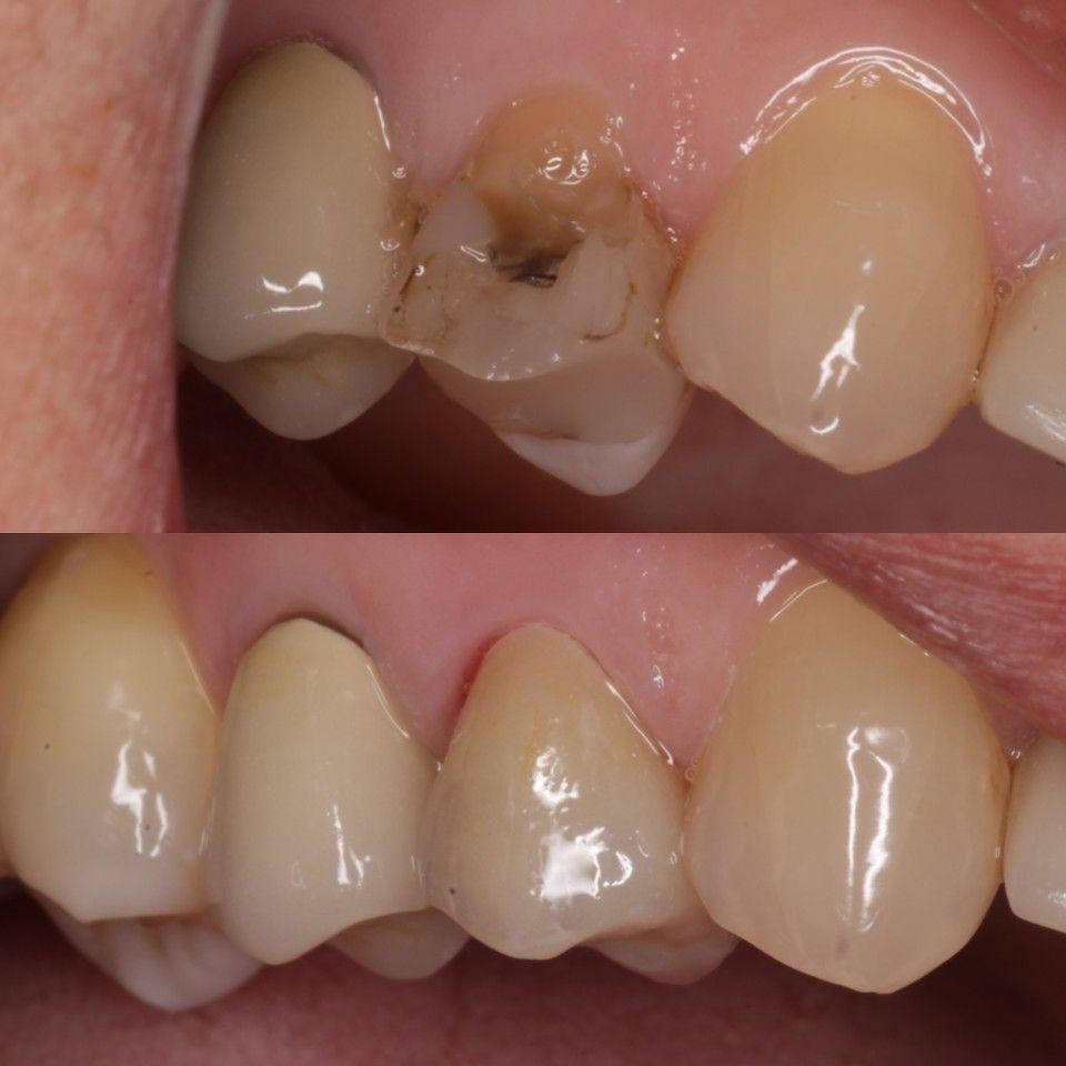 Dental Crown By Toronto Dentist Dr David Nguy Dental Crowns Dental Dental Crown Cost