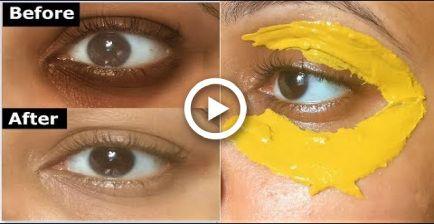 Photo of Kurkuma Augenmaske zum Entfernen von DUNKELKREISEN, Und