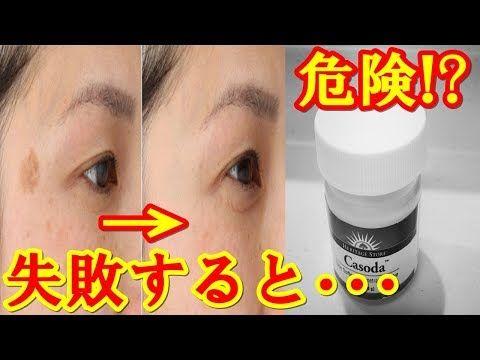 ひまし油 シミ 取り ひまし油を使った顔のシミ取りは危険⁈子宮にどんな効果があるのか調査...