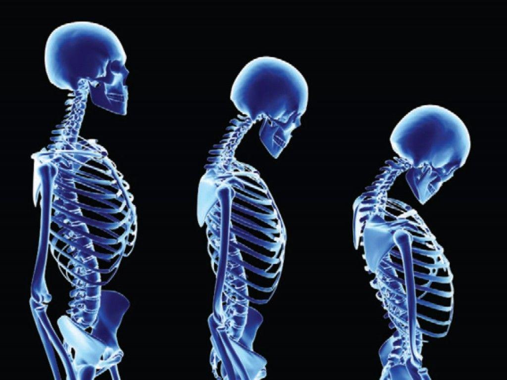 13+ Osteoporosis en la columna tratamiento natural information