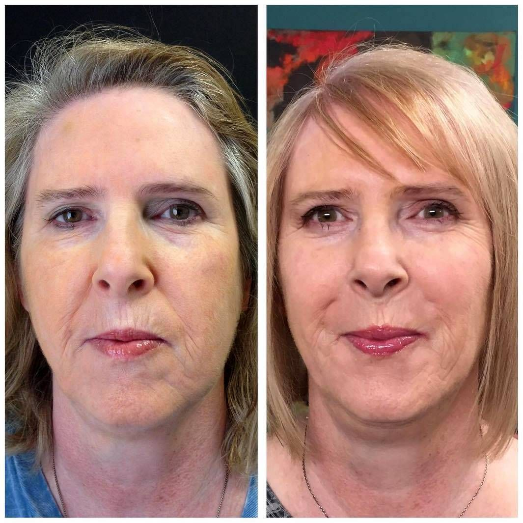 Thermage For Neck Before And After (4) Thermage