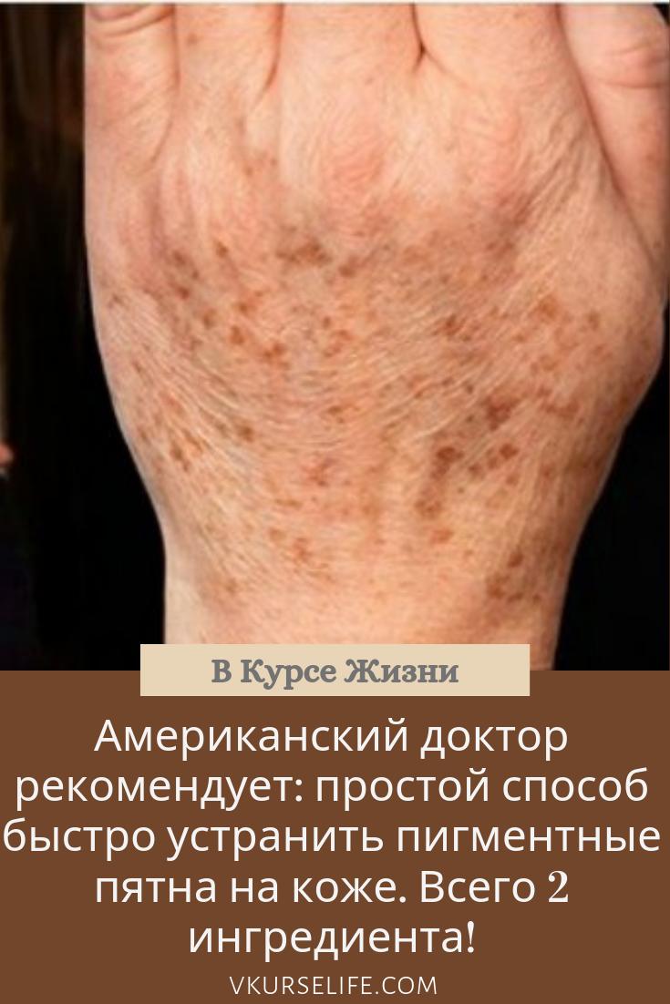 varicoză de la jess funcționarea procesului pentru varicoză