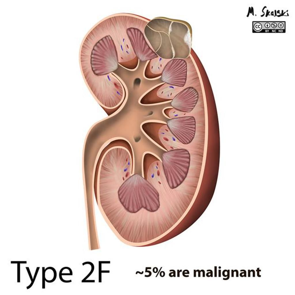 What is a kidney cyst