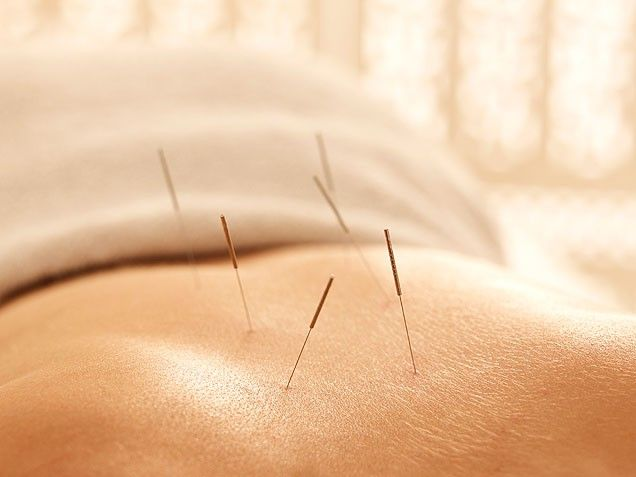 Acupuncture Natural Remedies for Menopause, I've been doing Acupuncture for three months for perimenopause.   Excellent results!