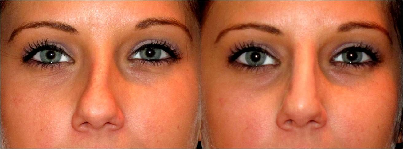 Crooked to straight in minutes-non surgical nose job | My