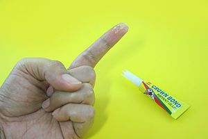 How To Get Rid Of Dried Super Glue On Fingers