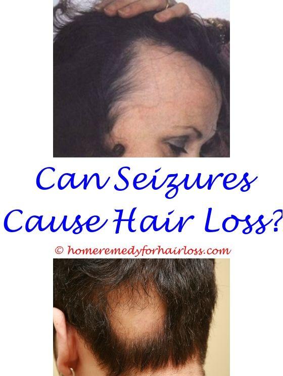 Hair Growth Shampoo | Hair loss vitamins, Hair loss and Hair loss ...