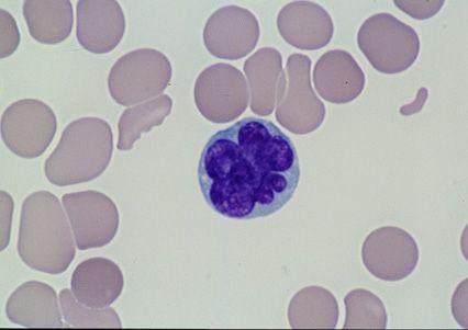 Adult T cell lymphoma/leukemia is HTLV-1 associated, is ...