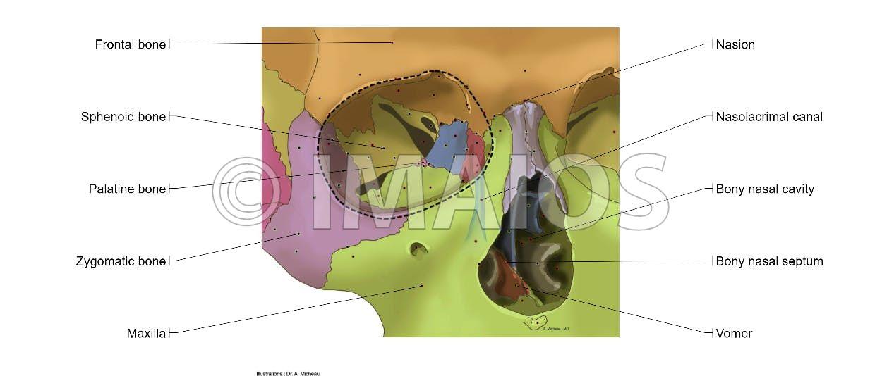 Orbital Cavity Lacrimal Groove Superior Orbital Fissure Inferior Orbital Fissure Nasolacrimal Canal Dental Anatomy Anatomy Medical Illustration