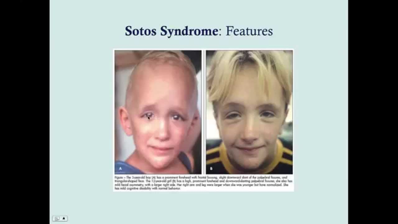 What is Sotos Syndrome | Sotos Syndrome Support Association
