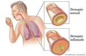 Muco e tosse: perché compaiono dopo aver smesso di fumare