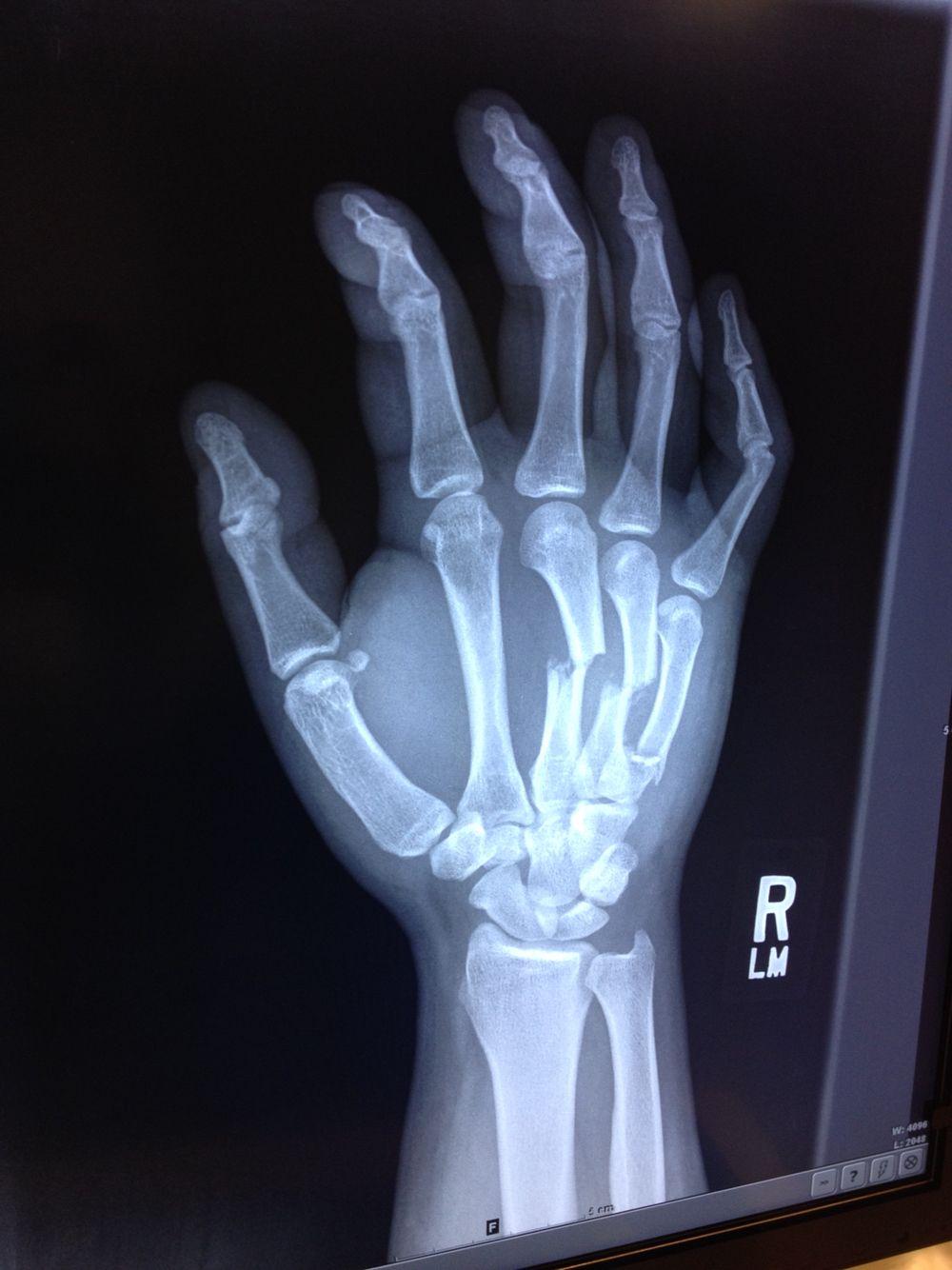 Broken Hand Dental Cases Hands