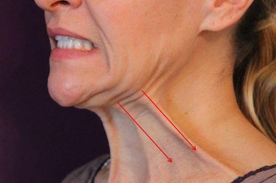 5 Exercices pour se débarrasser efficacement du double menton et tonifier le cou
