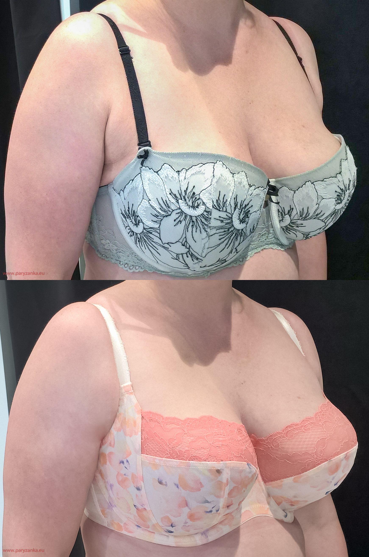 7212cb186cee91 Już niewielka zmiana kształtu piersi powoduje, że znikają nasze kompleksy,  a nastrój ulega diametralnej