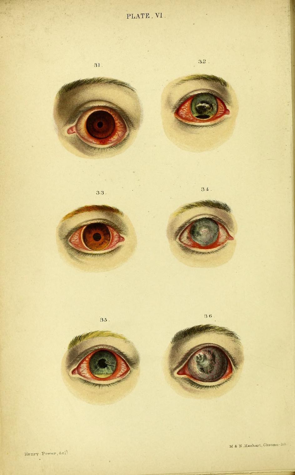 Plate VI. Fig 31. Catarrho-rheumatic ophtalmia in a boy aet 16. Fig ...