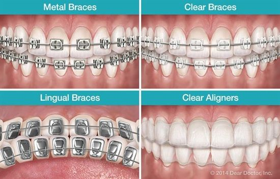 Dentaltown Orthodontics Can Be Done In Many Different Ways To Help Correct Your Particular Problem Traditional Types Of Braces Dental Braces Ceramic Braces