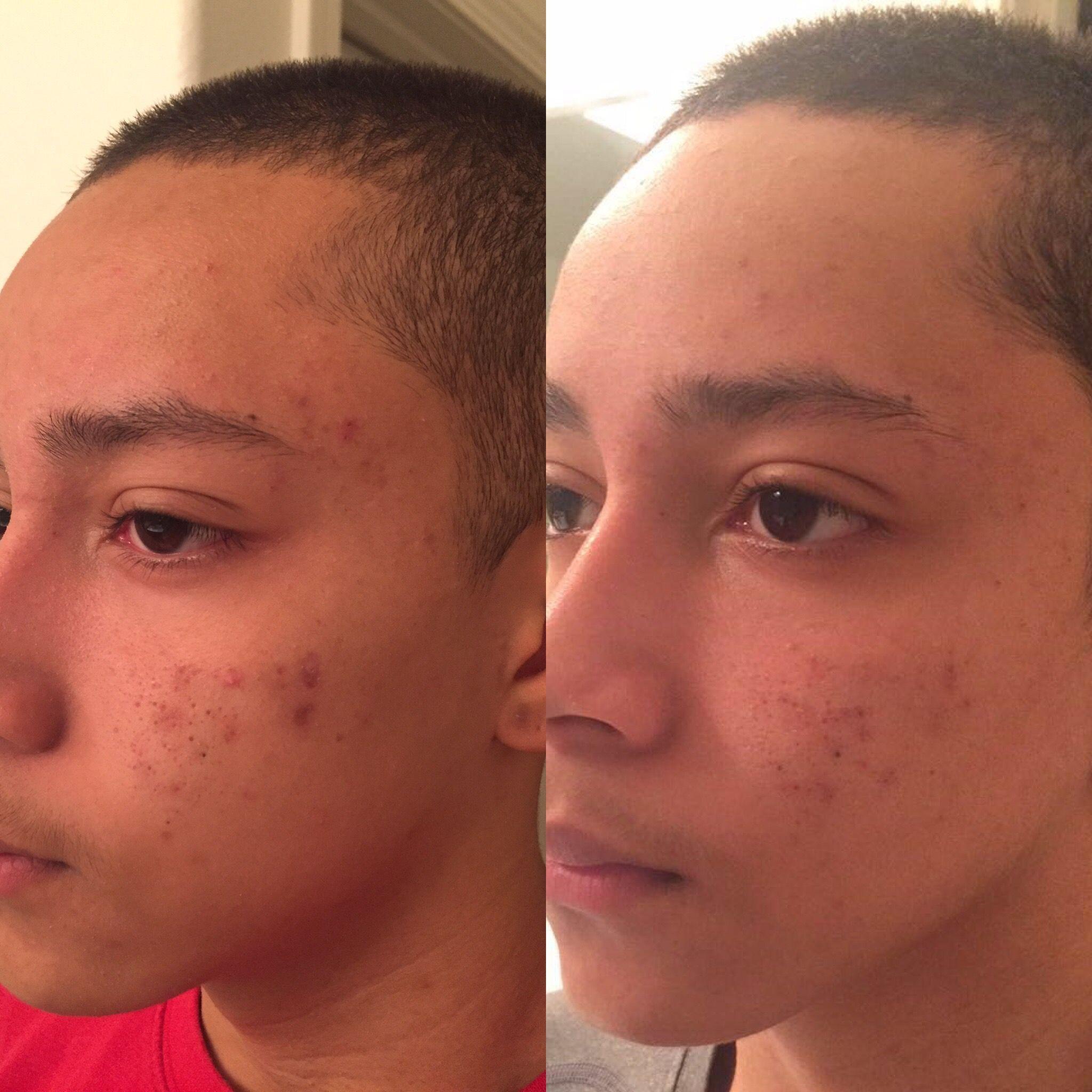 My Son S 60 Day Results His Acne Is Clearing Up Herbalifeclarify Order Today Www Goherbalife Com Lisaanderson415 Herbal Herbalife Nutrition Skin Herbalife