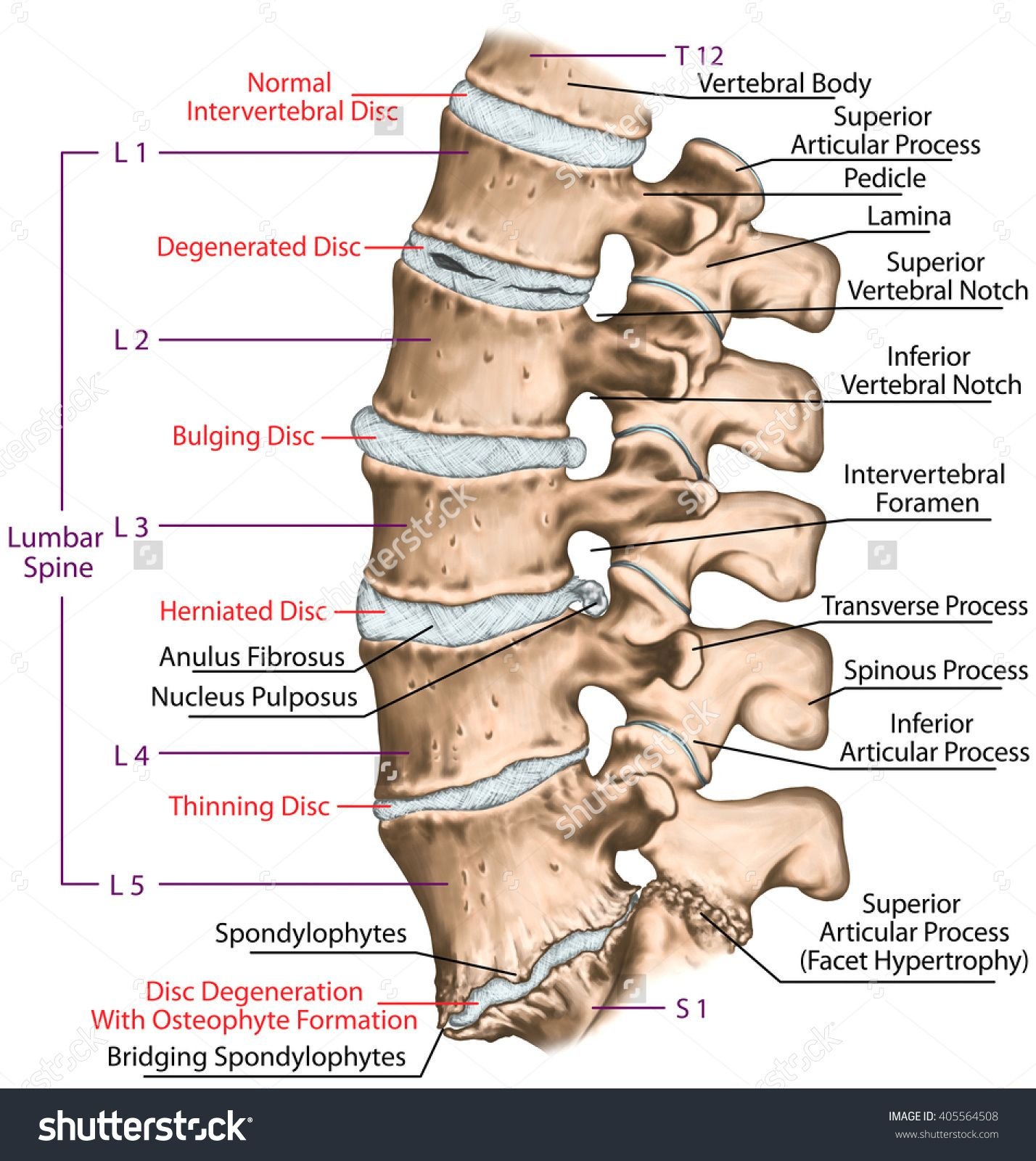 this improper alignment causes the facet joints the areas where the vertebral bones touch to twist into an unnatural position  [ 1428 x 1600 Pixel ]