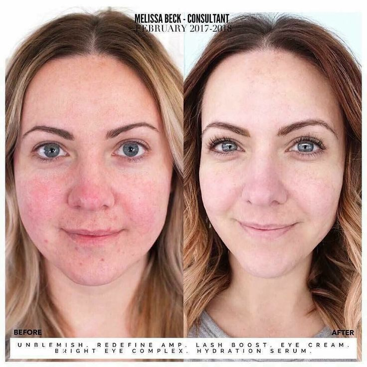 Rodan+Fields before and after results Soothe, Lash Boost