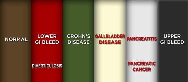 Dr Oz Poop Color Chart  Stomach Cancer Warning Signs And Kidney