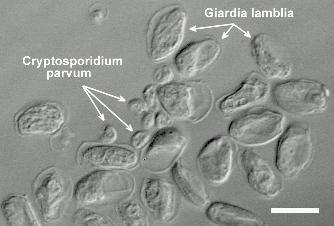 giardia cryptosporidium)