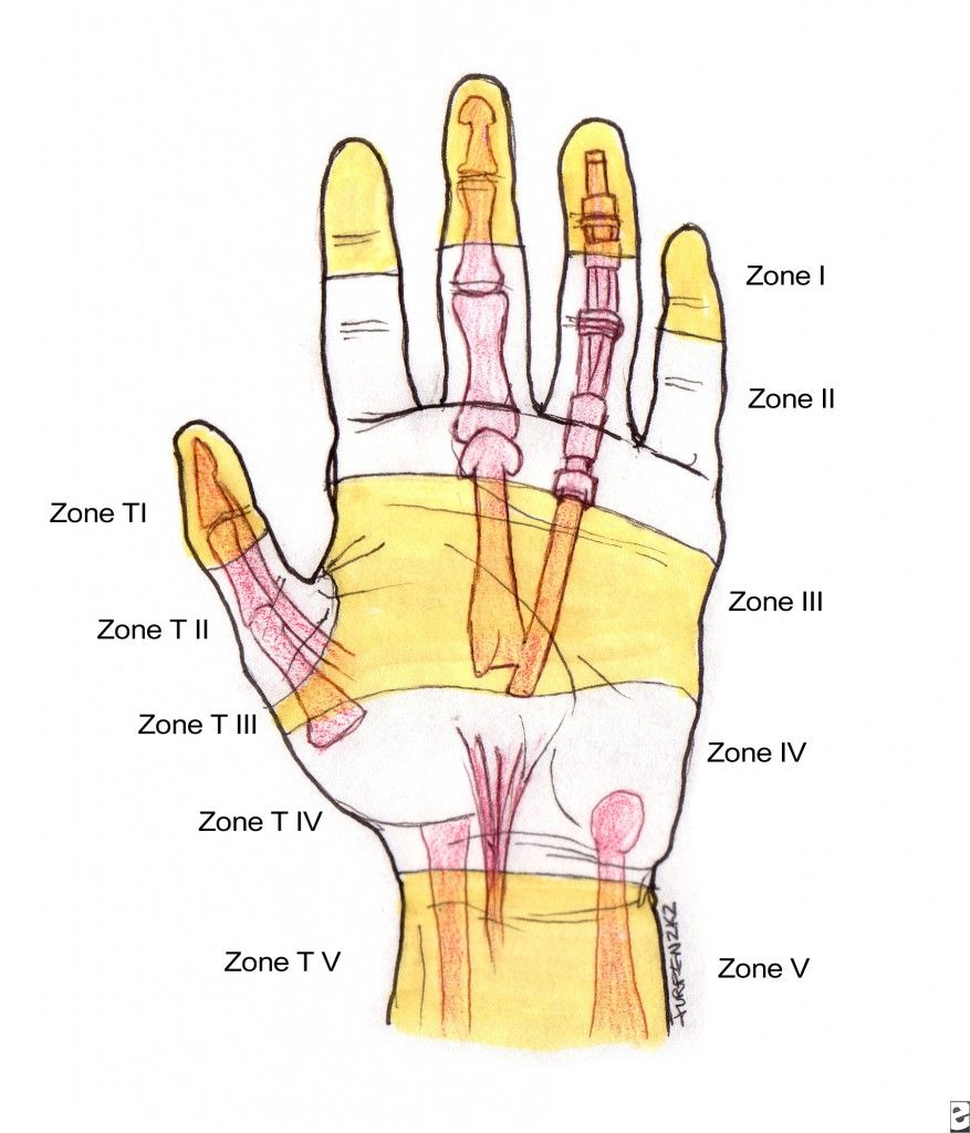 There are five flexor tendon zones in hand and each zone influences ...
