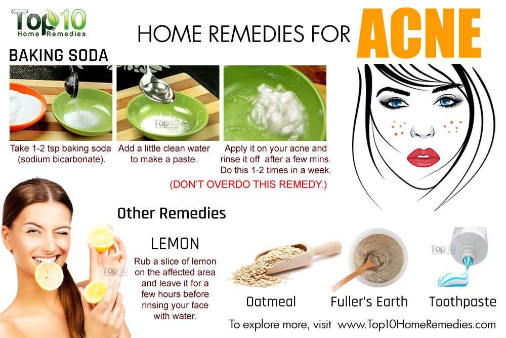 How To Clear Acne Home Remedies