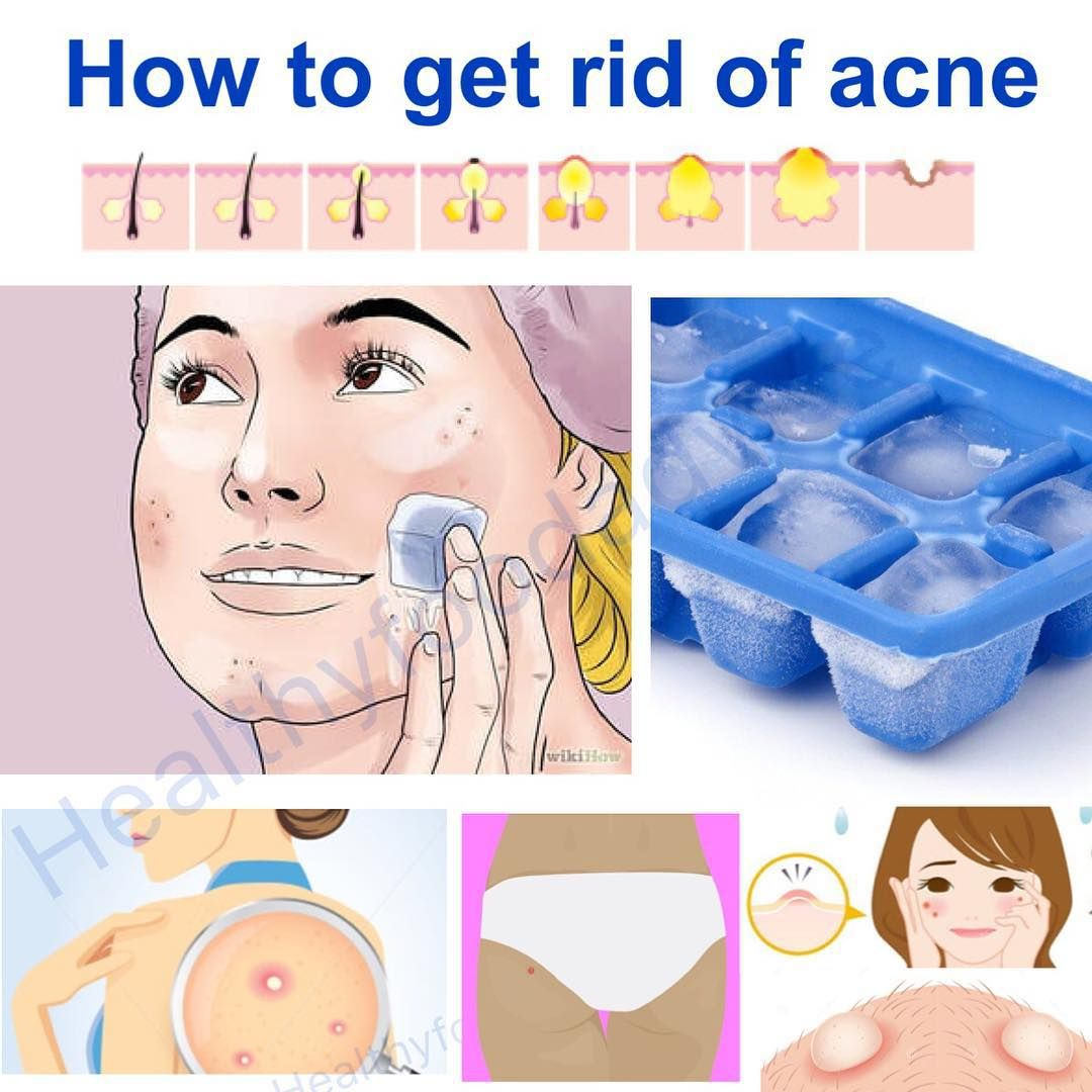 How To Get Rid Of A Zit In An Hour