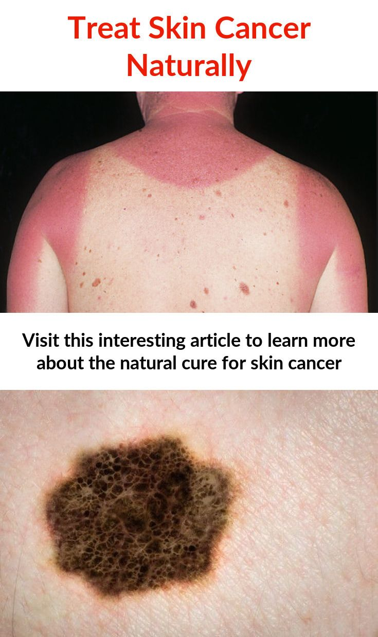 Just Click This Image To Get More Information Home Remedies For Skin Cancer Skincancernaturalcure Skin Cancer Natural Remedies Natural Remedies Home Rem