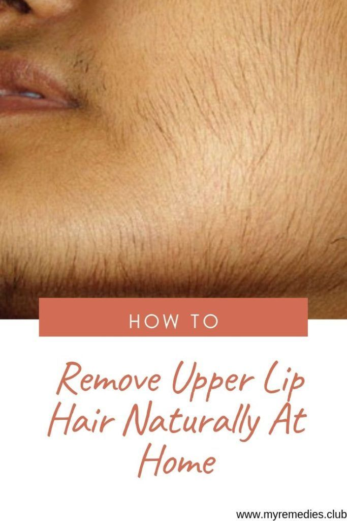 How to Remove Unwanted Hair from Your Upper Lip Naturally  Page 4  My Remedies Club
