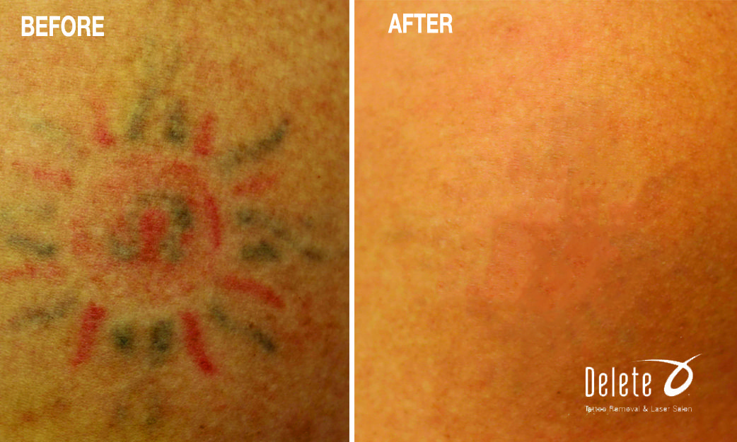 The Valley S Best Tattoo Removal With The Exclusive Picoway Laser Call 855 2delete To Receive A Complimentary Consul Tattoo Removal Cost Tattoos Tattoo Eraser