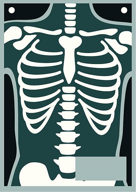 Human Body X Ray Rib Cage Rib Cage Weird Tattoos Baby Cartoon