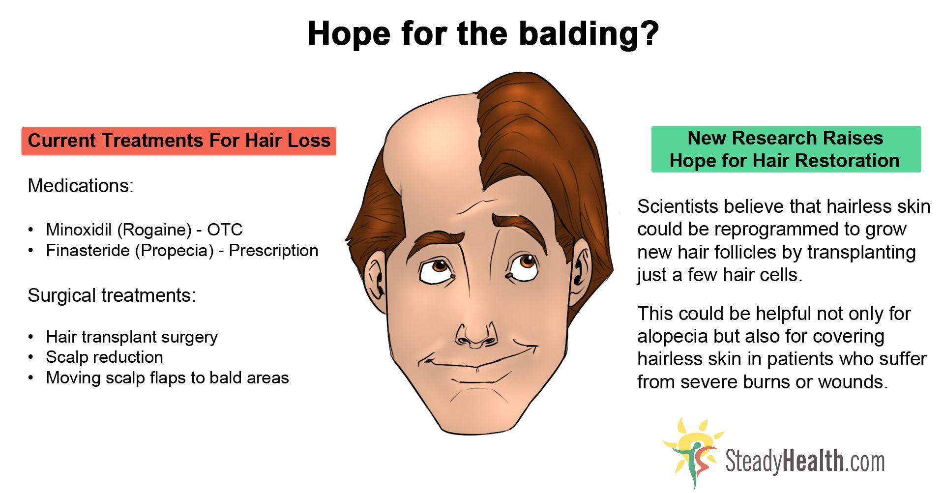 Masturbation and baldness
