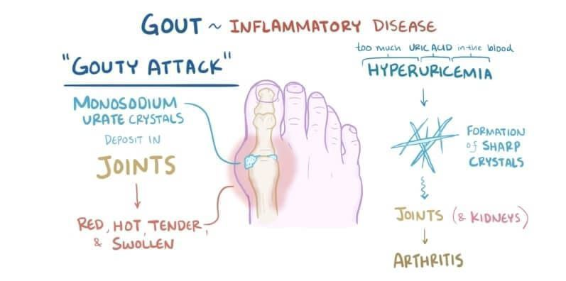 Medicines for gout treatment include: The list below presents some of the common medications…