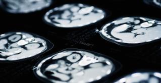 Tomografías revelan como justificamos la violencia