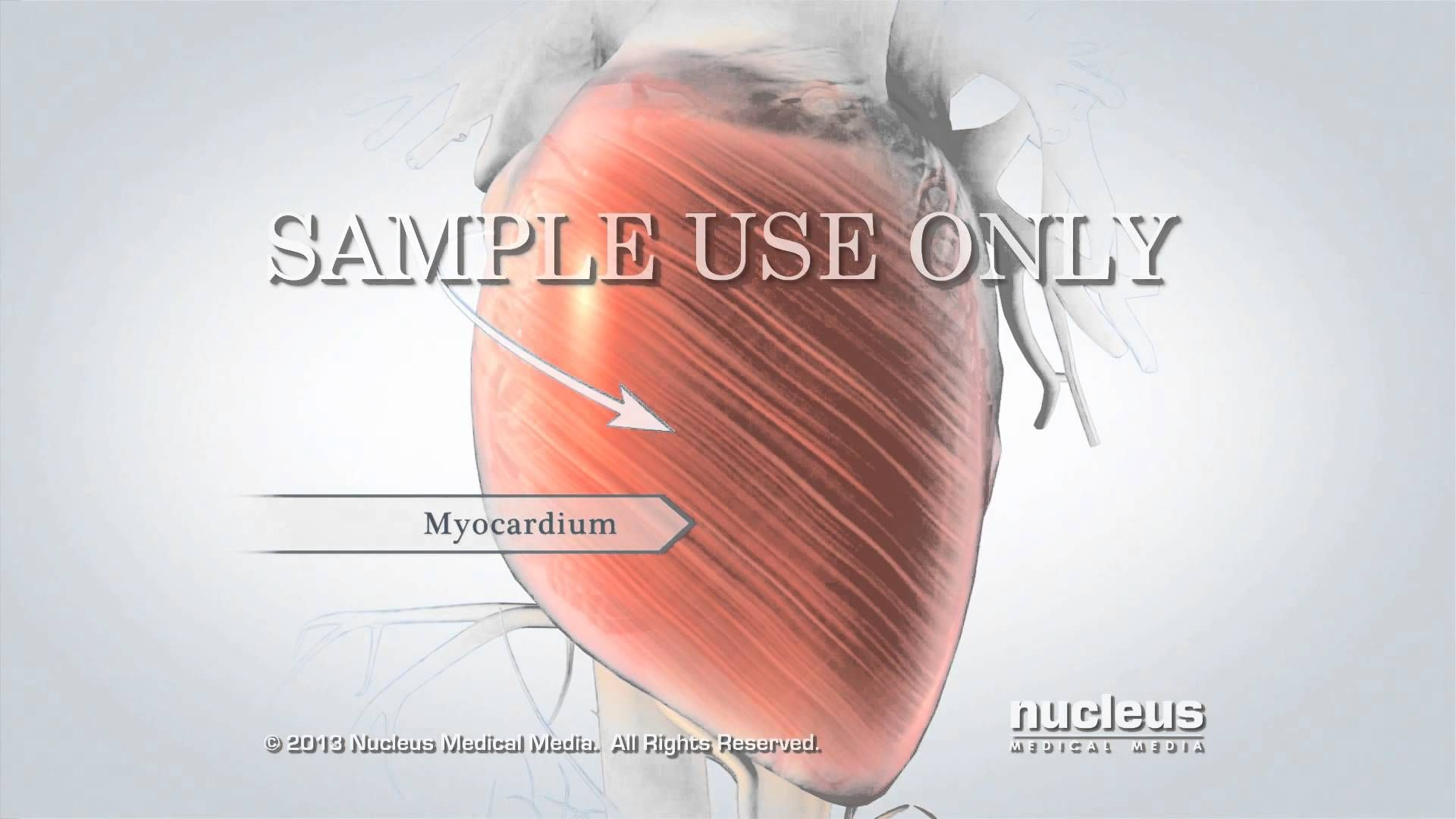 View more NUCLEUS medical animations at http://www.nucleuslibrary ...