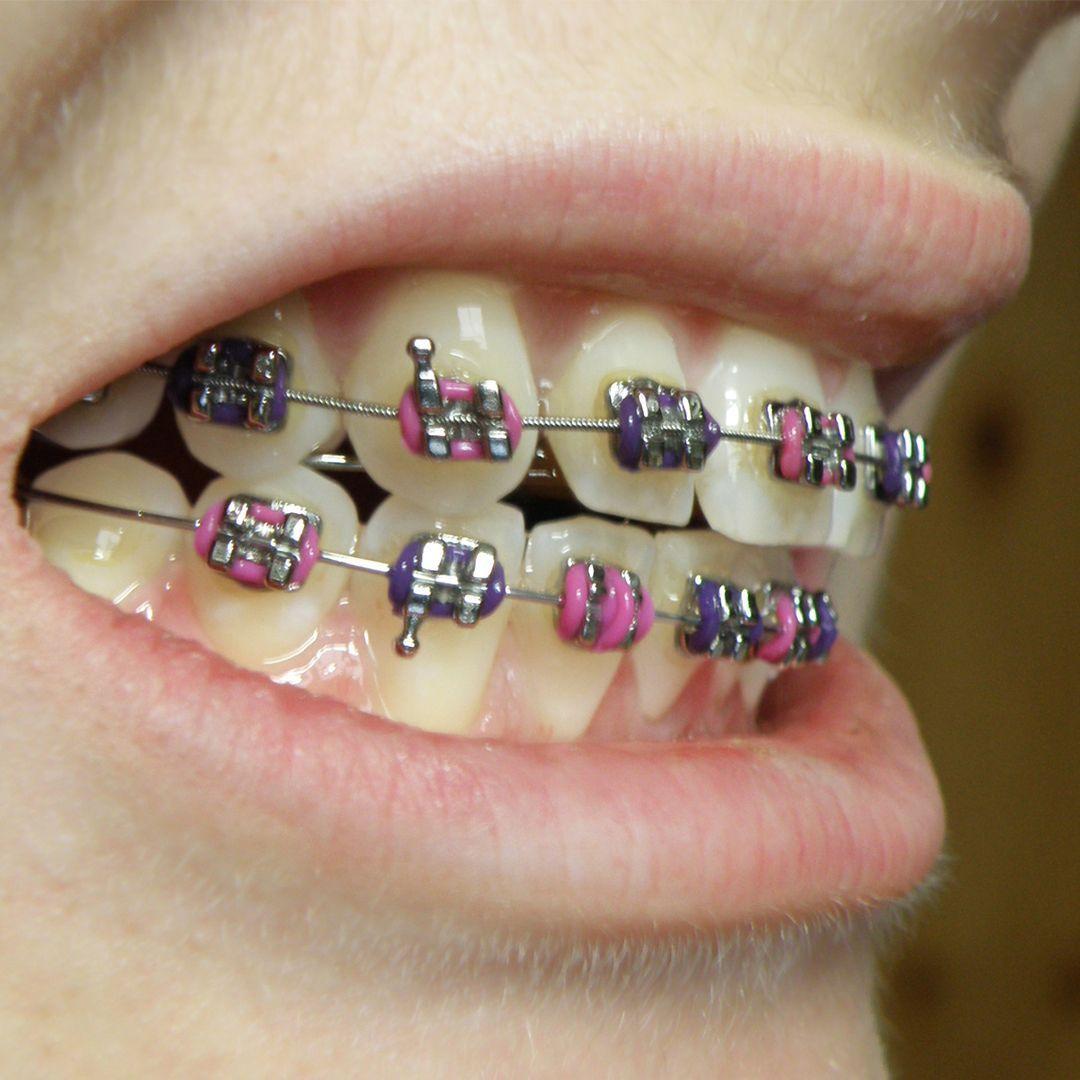 Closed post dental surgery food teethwhiteningbx